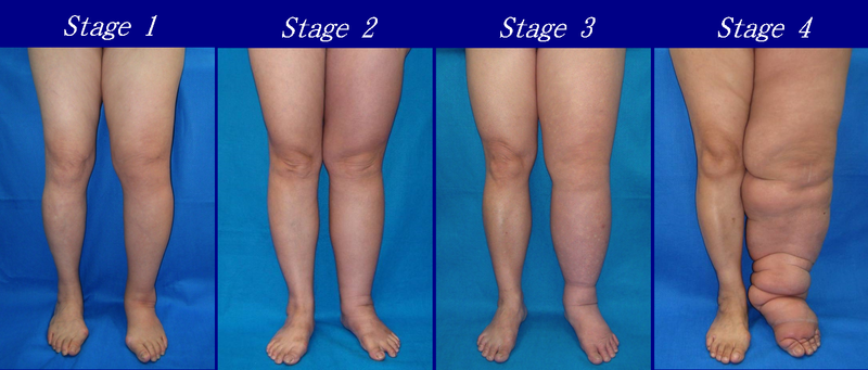 lower lymphedema stages