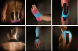 Kinesio® Taping Assessments, Fundamental Concepts & Techniques